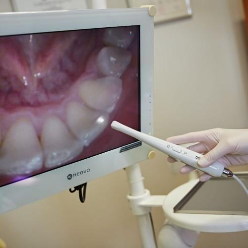 zdjęcie uzębienia na monitorze